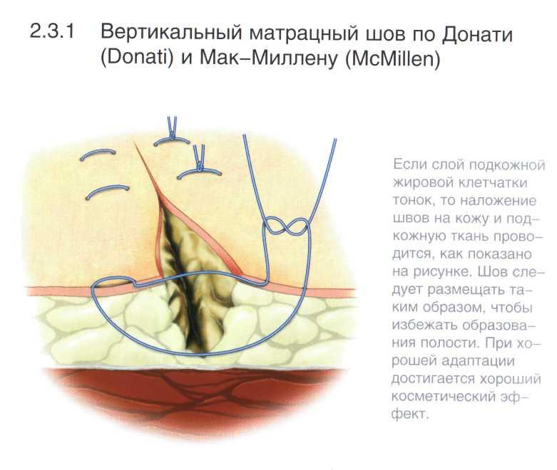 Шов Хирургический